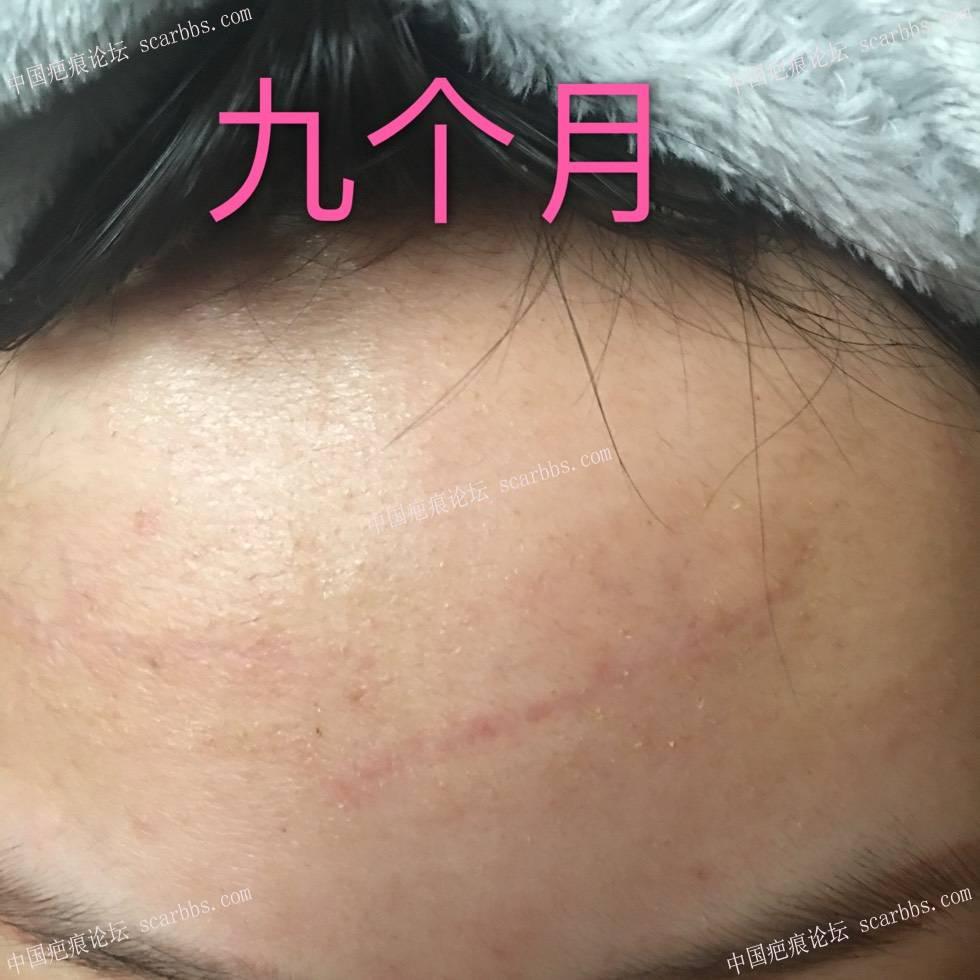 1月31号的额头疤痕切除术 额头疤痕,手术切缝,杨东运教授