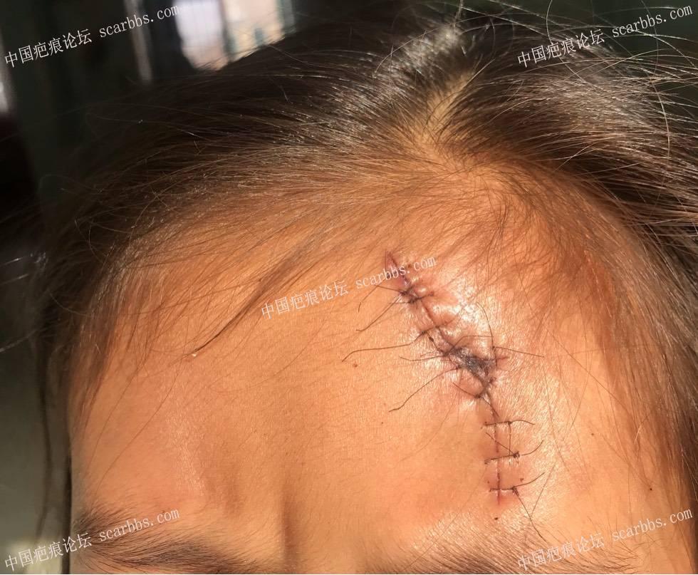 宝贝儿额头磕伤,缝了12针