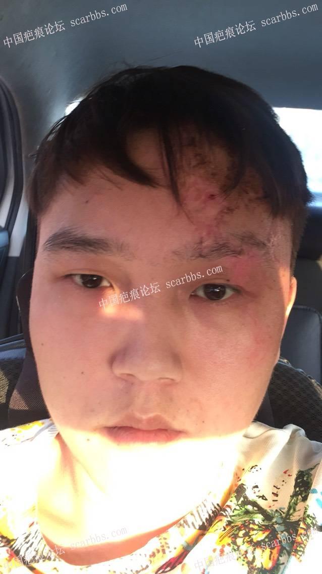 面部受伤局部皮肤一直紧绷