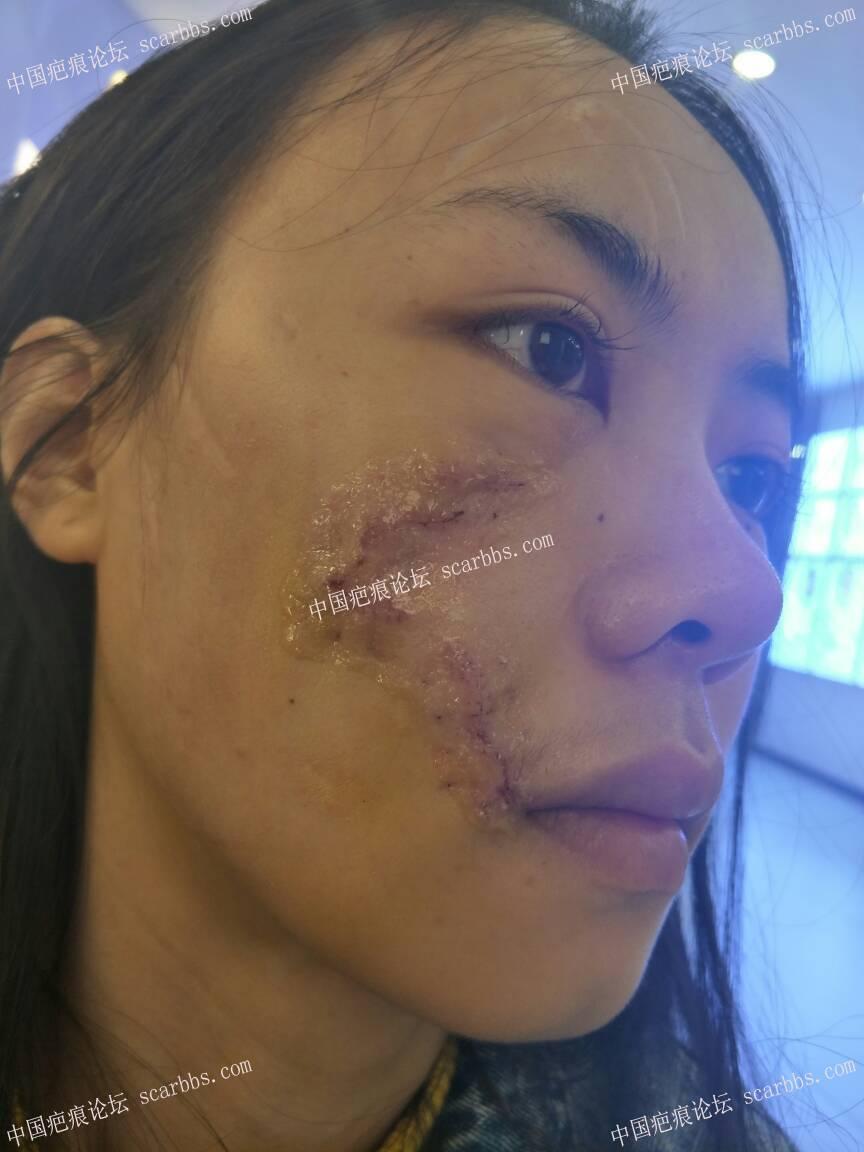 11月1号杨教授面部疤痕切缝手术