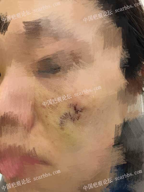 杨教授转瓣手术治疗面部圆形凹陷疤痕 痘坑疤痕,转瓣手术,杨东运教授