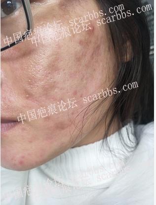 面部痘坑治疗,感谢时光完成多年遗憾 痘坑疤痕,凹陷切缝 天津时光,