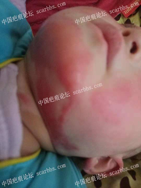 女儿9月22号被烫伤面部,求助