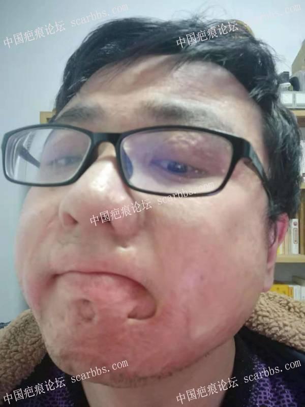 求助,近20年的面部烧伤怎么治疗好