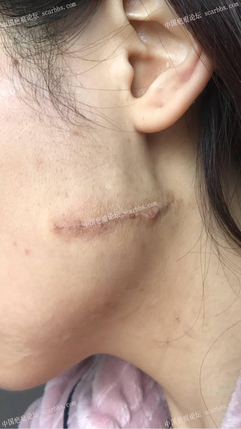 11月22号杨东运教授做的左脸疤痕切缝 面部手术疤痕,切缝修复,杨东运教授