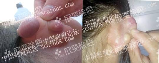 打耳洞留下疤痕疙瘩治疗方案交流分享 耳廓疤痕疙瘩,经验交流