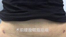 离子术疤痕治疗后的恢复周期 plasma,离子束