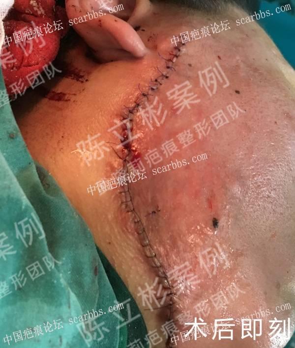 下颌疤痕疙瘩术后30个月复诊记录 腮部疤痕疙瘩,手术,放疗,