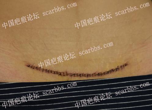 剖腹产疤痕增生了,手术切掉它