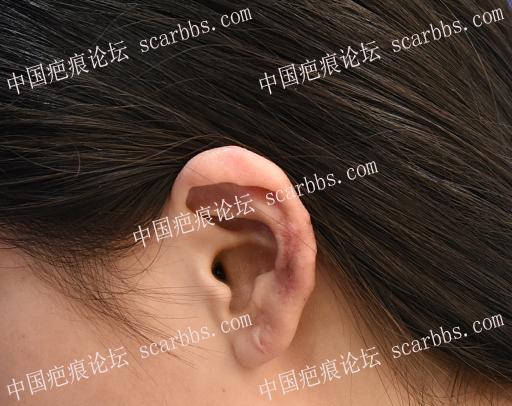打耳洞引起了疤痕疙瘩怎么办?
