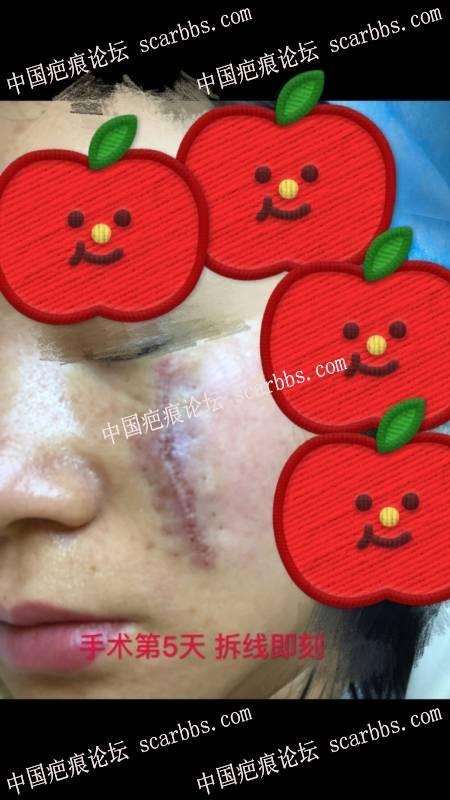 2019.1.11在杨教授那里做了脸上疤痕切缝手术,期待化妆无痕! 面部凹陷疤痕,手术切缝,