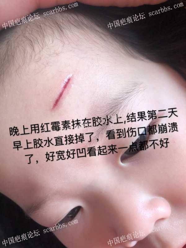 额头磕伤开帖做记录,坚持坚持一定要无痕呐 额头磕伤,