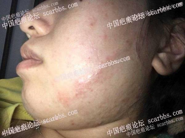 面部疤痕术后两年记录,基本无痕 面部疤痕,手术切缝,