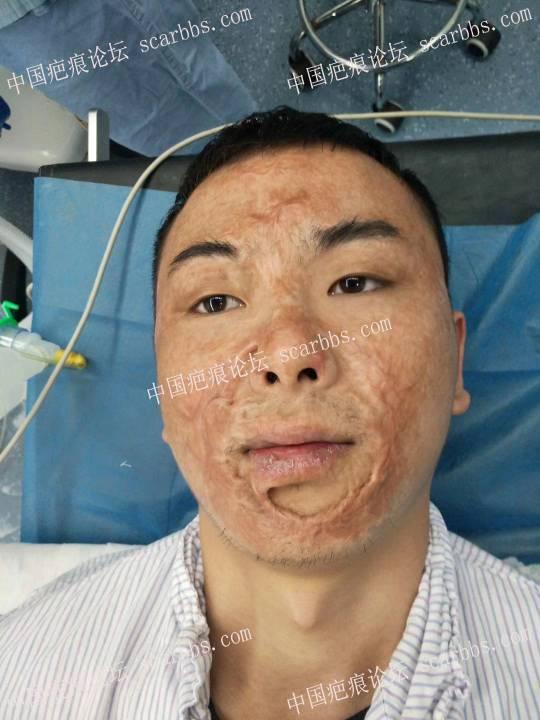 面部大面积烧烫伤疤痕,在重庆做激光、皮瓣手术的历程 烧烫伤,党永明