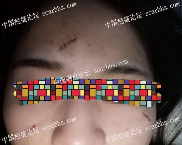 面部圆形凹陷点痣疤痕切除记录 点痣疤痕,切缝