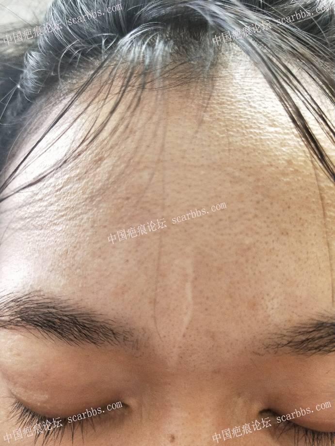2019-2-15杨教授手术治疗记录