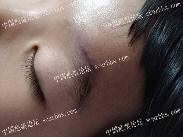 宝贝眉毛磕伤快40天了,期待无痕 眉部磕伤,无痕,