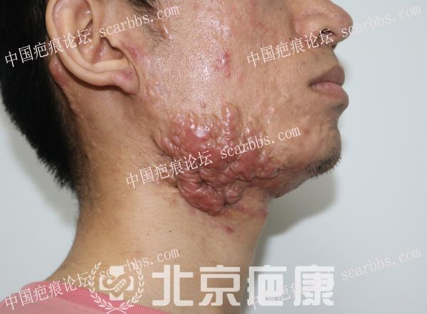 段先生下颌痤疮疤痕疙瘩治疗案例分享 腮部疤痕疙瘩,北京疤康,