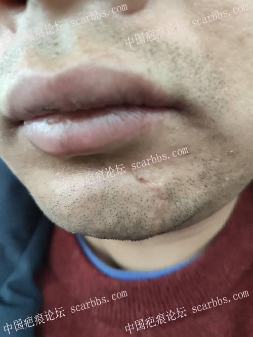 下巴处凹陷疤痕,2018年12月6号找杨教授切缝 凹陷疤痕,下巴,杨东运教授
