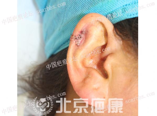 范女士耳朵瘢痕疙瘩治疗案例分享