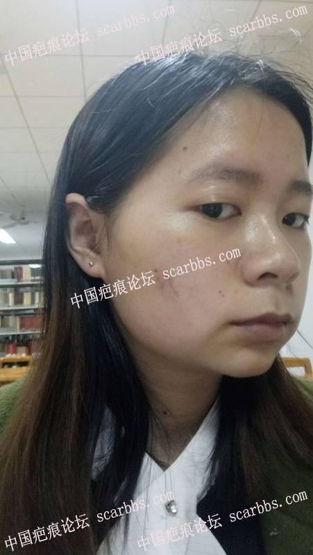 面部凹陷疤痕切除了,终于有勇气撩开头发抬头往前走 凹陷疤痕,切缝,