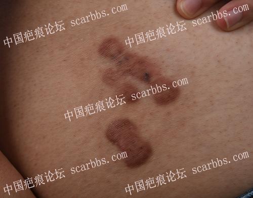 臀部自发性疤痕疙瘩注射治疗+浅放防复发