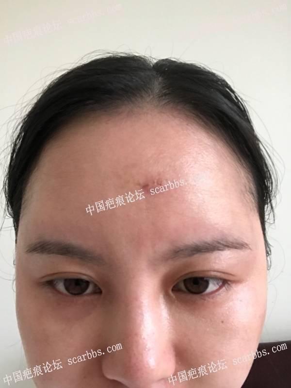 额头凹疤切缝第十一天 凹陷疤痕,切缝,