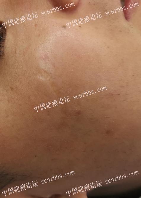 3月15日面部凹陷疤痕杨东运教授切缝 凹陷疤痕,杨东运教授