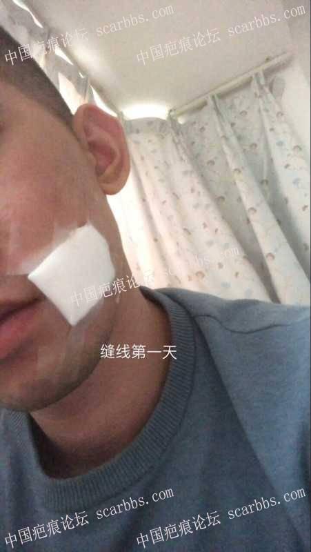 面部凹陷疤痕,广州中山三院(胡瑛)做的疤痕切缝手术 凹陷疤痕,切缝