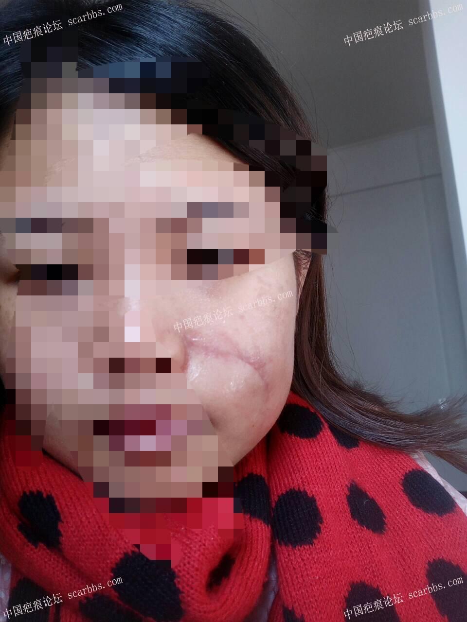 面部凹陷疤痕手术切缝日记