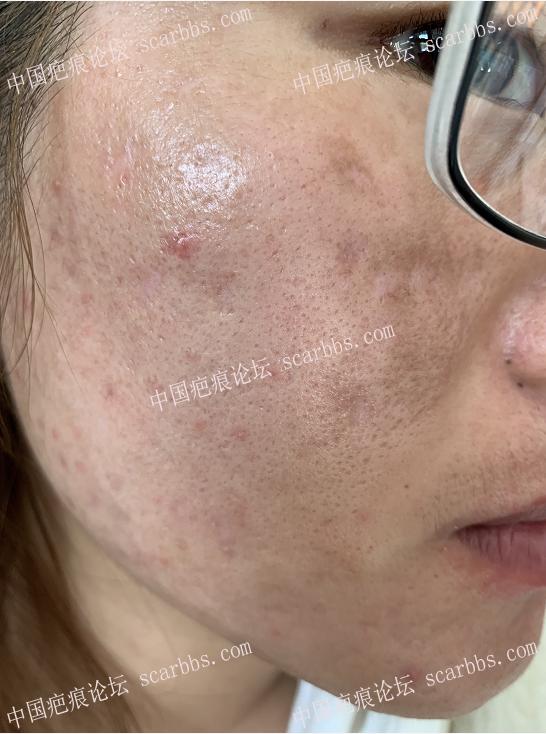 面部痘坑治疗,感谢时光完成多年遗憾 痘坑疤痕,凹陷切缝 天津时光