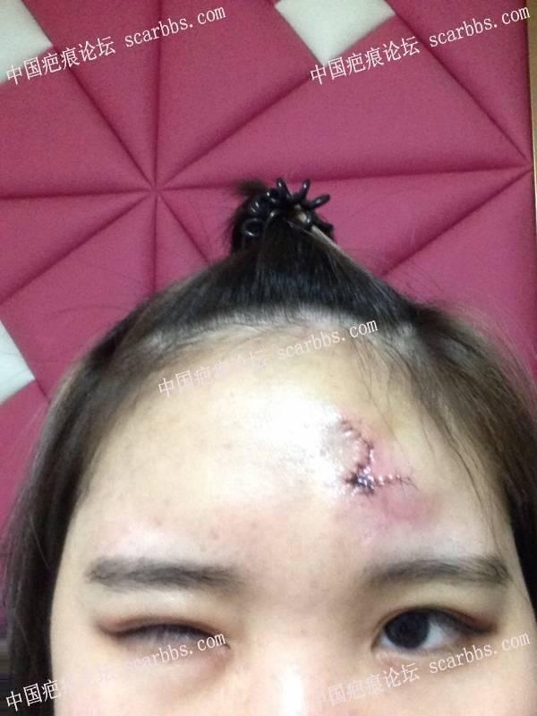 三年的治疤经历,希望你们看到希望 面部疤痕,治疤经历