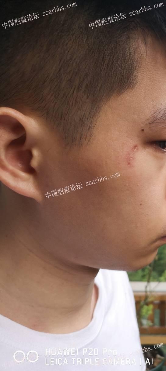 面部色素疤痕怎么办,心理负担好重