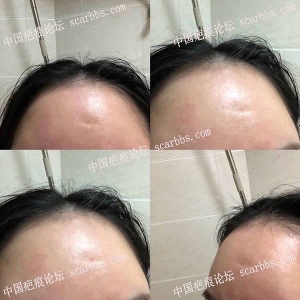额头凹陷疤痕切缝手术两个月整 额头,凹陷疤痕,切缝手术,