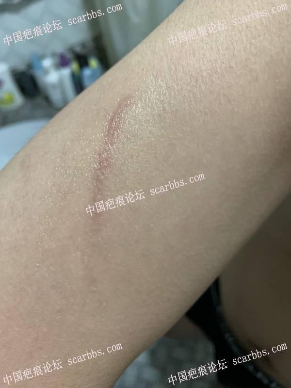 胳膊去年10月份的抓伤疤痕,还能治疗吗如图