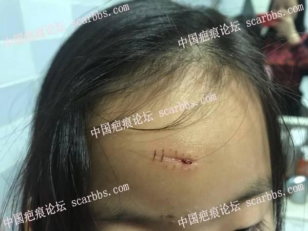 6岁女儿额头表情凹疤痕切缝记录