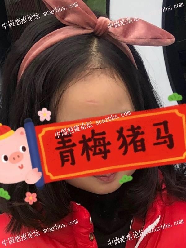 6岁女儿额头表情凹疤痕切缝记录 表情凹陷,切缝,