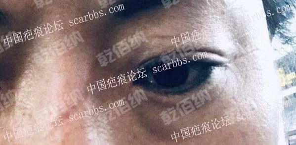 十几年的面部车祸划伤修复案例 鼻梁划伤,陈旧疤痕,面部色沉,车祸划伤,眼部疤痕,