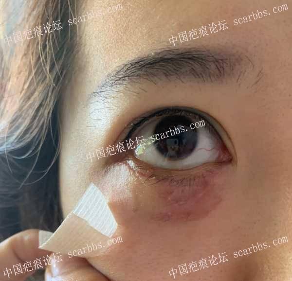 求助,这种色素疤痕应该怎么修复?