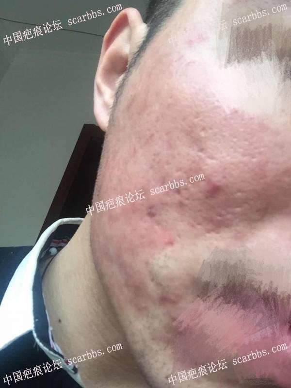 """""""抗""""疤多年,终于让我敢正视自己 痘坑疤痕,切缝,填充剥离,"""