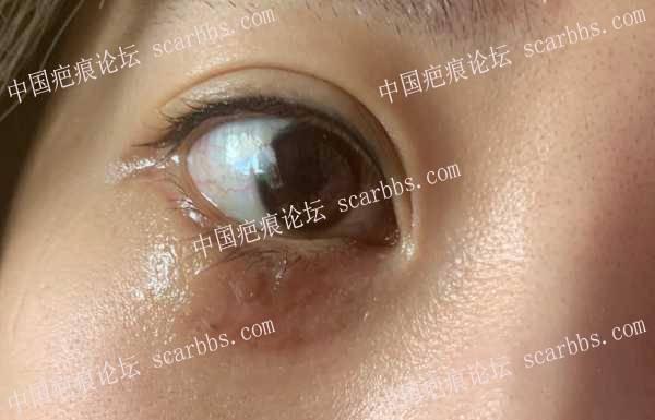 眼睛下面的黑色素,无痕有可能吗? 无痕,黑色素,