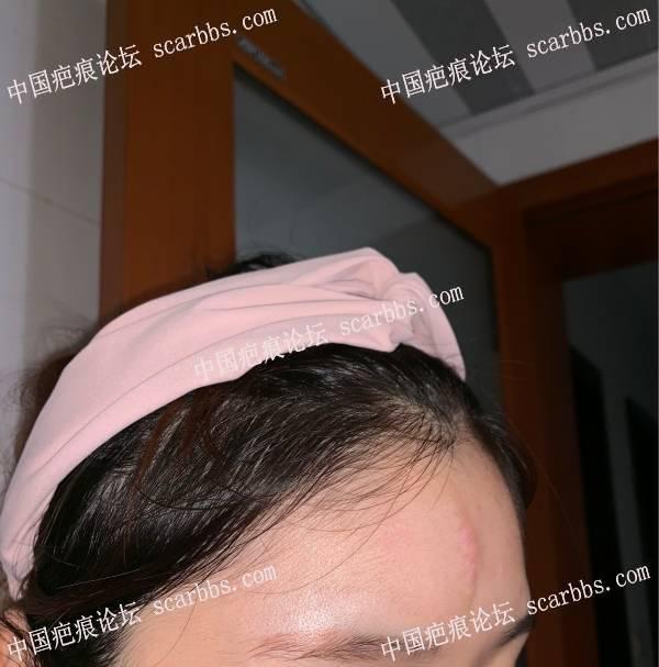 6月5号武晓莉切除额头凹陷疤痕