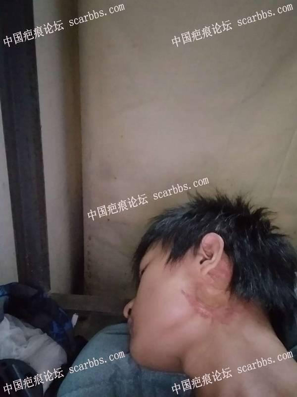 下颌疤痕疙瘩,已形成结节,综合治疗记录 腮部疤痕疙瘩,综合治疗
