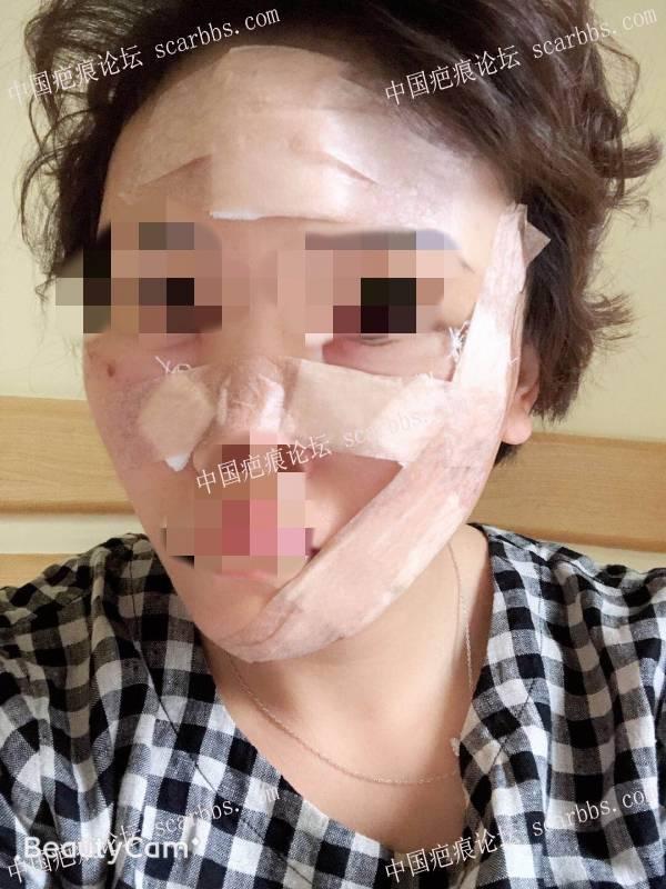 困扰30多年的面部水痘坑切缝反馈