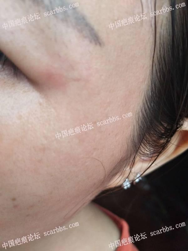面部凹陷疤痕手术两个月后的样子