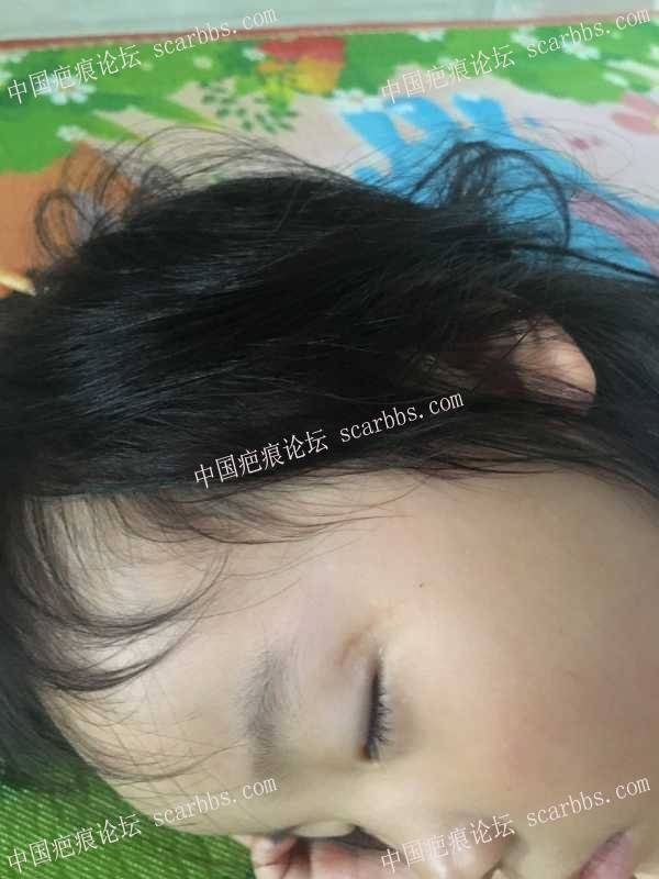 宝宝眼角凹陷疤痕,是不是有相同经历的妈妈? 释怀,折磨,留神,一年多,