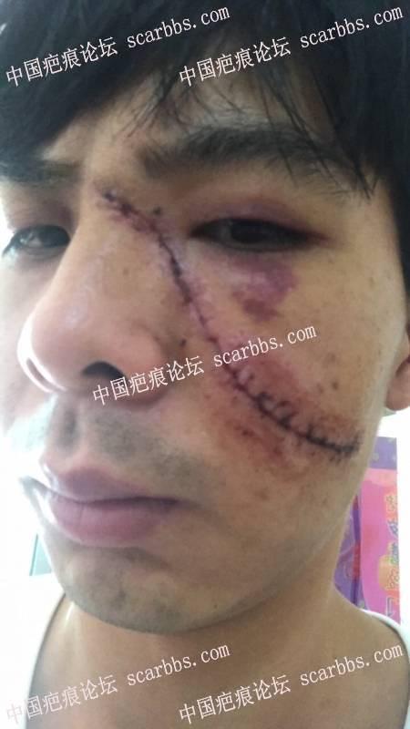 面部手术疤痕,刚拆线怎么护理?