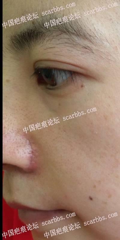 鼻翼手术疤痕,可以用芭克和美皮护了吗?