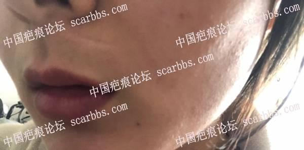7.17号唇部疤痕手术记录