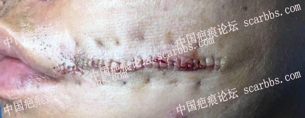 预约汤医生7月12嘴角切缝恢复记录